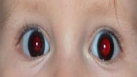 Fotoğraflarda kırmızı göz nasıl engellenir?